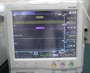 心電図モニター(ECG)